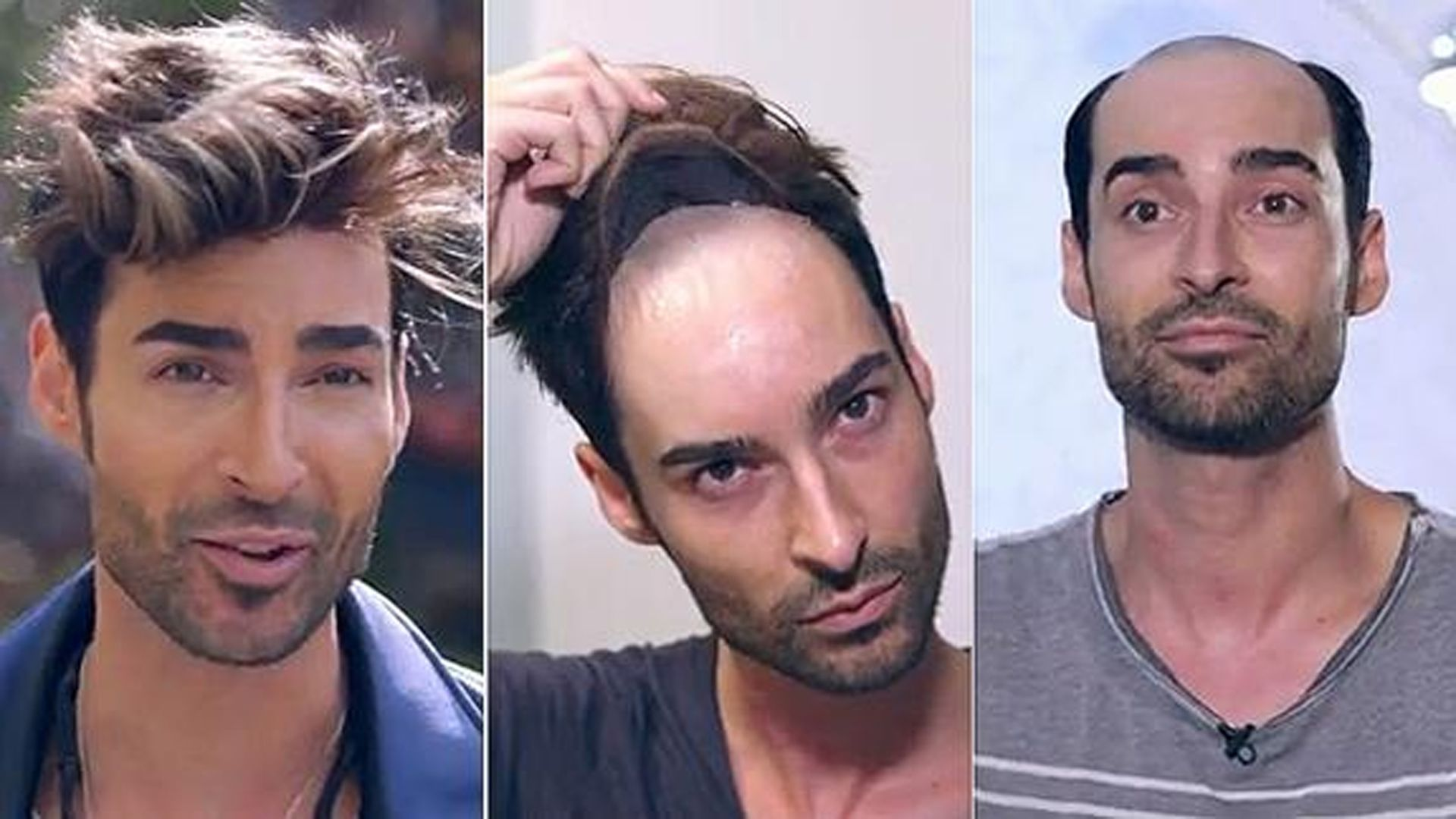 solución alopecia androgenética